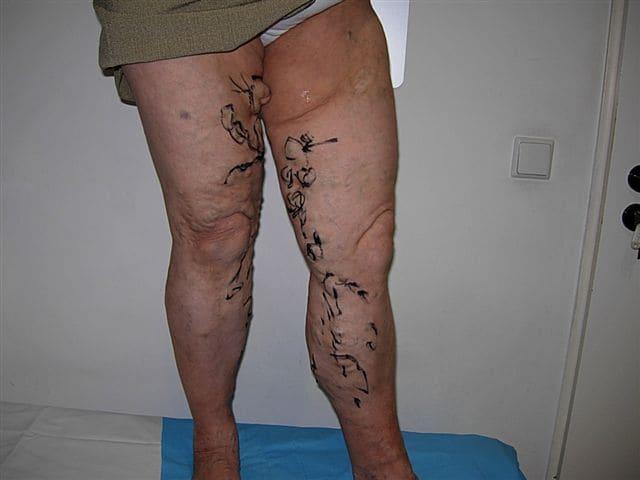 nogi pacjenta